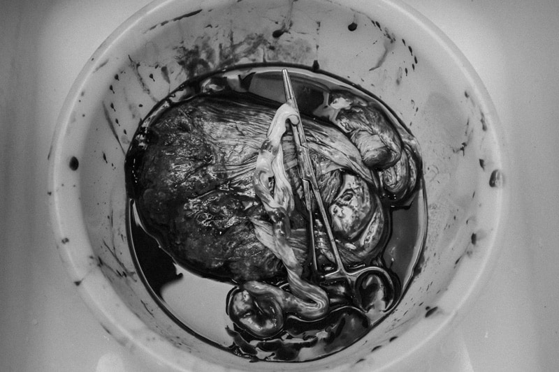 Seattle Birth Photography, clamped placenta in bowl