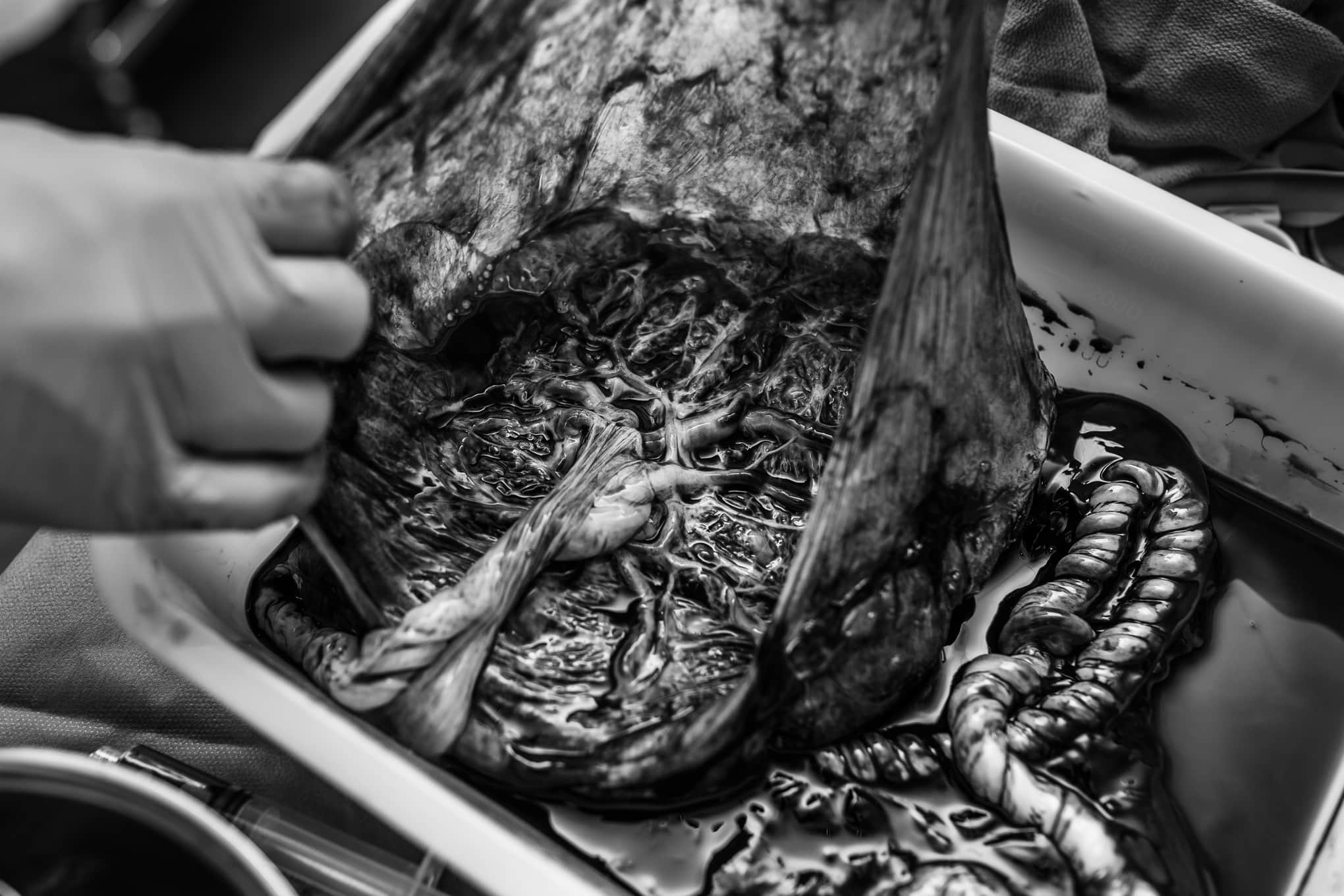 Denver Birth Photography, black and white shot of placenta